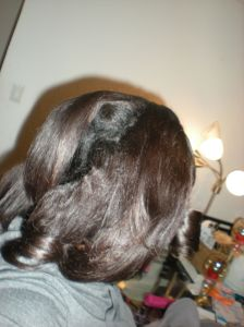 After removing the bobbi pins